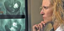 HSG Komplikasyonları Nelerdir?